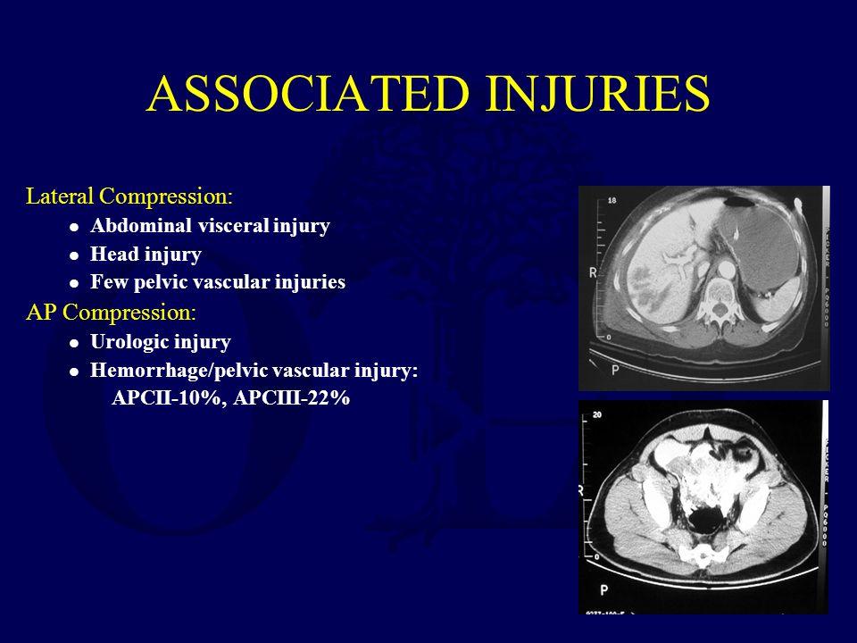 ASSOCIATED INJURIES Lateral Compression: l Abdominal visceral injury l Head injury l Few pelvic vascular injuries AP Compression: l Urologic injury l Hemorrhage/pelvic vascular injury: APCII-10%, APCIII-22%