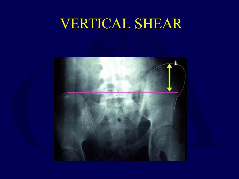 VERTICAL SHEAR