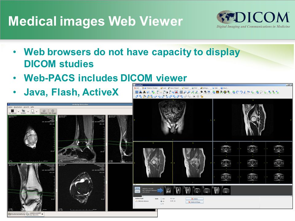 Medical images Web Viewer Web browsers do not have capacity to display DICOM studies Web-PACS includes DICOM viewer Java, Flash, ActiveX