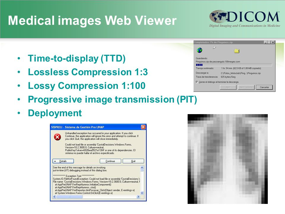 Medical images Web Viewer Time-to-display (TTD) Lossless Compression 1:3 Lossy Compression 1:100 Progressive image transmission (PIT) Deployment
