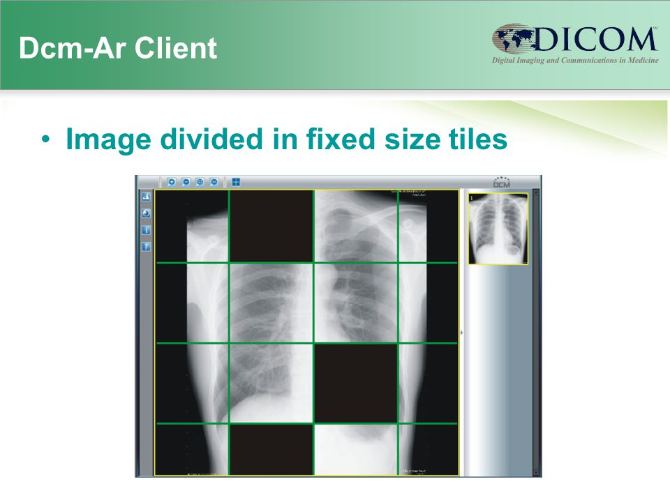 Dcm-Ar Client Image divided in fixed size tiles