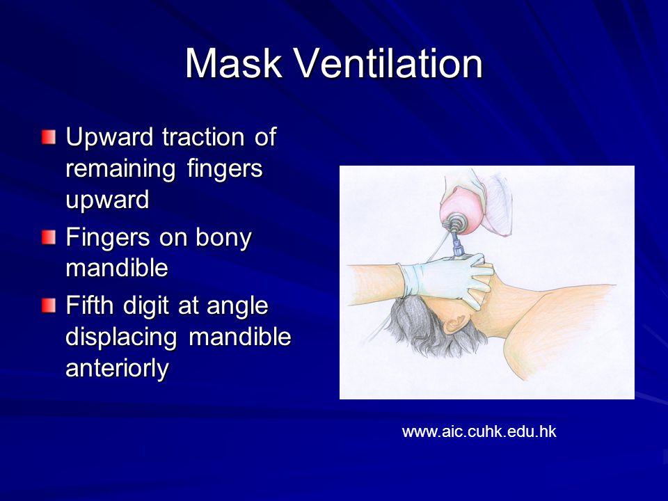 Mask Ventilation Upward traction of remaining fingers upward Fingers on bony mandible Fifth digit at angle displacing mandible anteriorly www.aic.cuhk