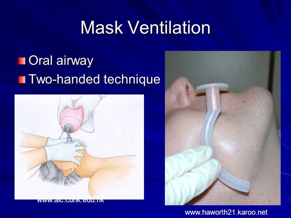 Mask Ventilation Oral airway Two-handed technique www.aic.cuhk.edu.hk www.haworth21.karoo.net