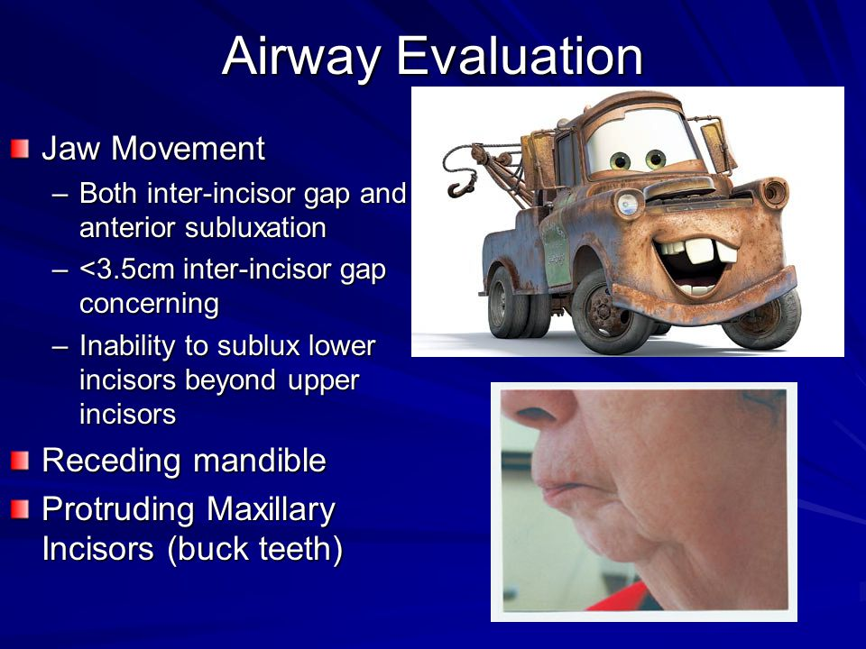Airway Evaluation Jaw Movement –Both inter-incisor gap and anterior subluxation –<3.5cm inter-incisor gap concerning –Inability to sublux lower inciso