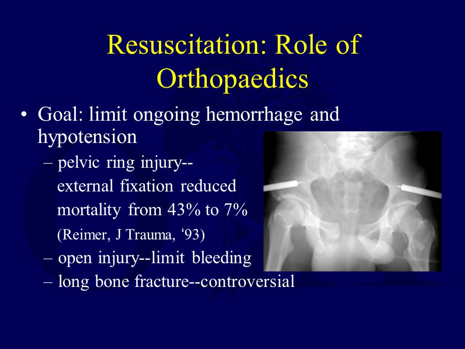 Resuscitation: Role of Orthopaedics Goal: limit ongoing hemorrhage and hypotension –pelvic ring injury-- external fixation reduced mortality from 43%