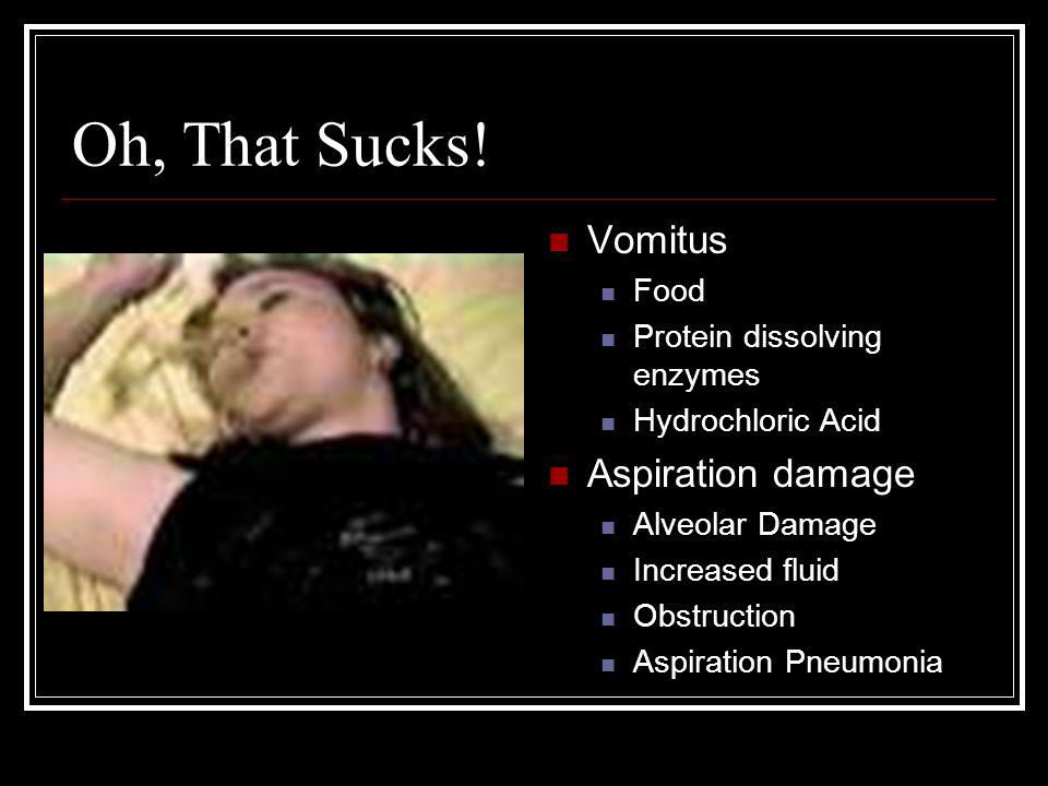 Oh, That Sucks! Vomitus Food Protein dissolving enzymes Hydrochloric Acid Aspiration damage Alveolar Damage Increased fluid Obstruction Aspiration Pne
