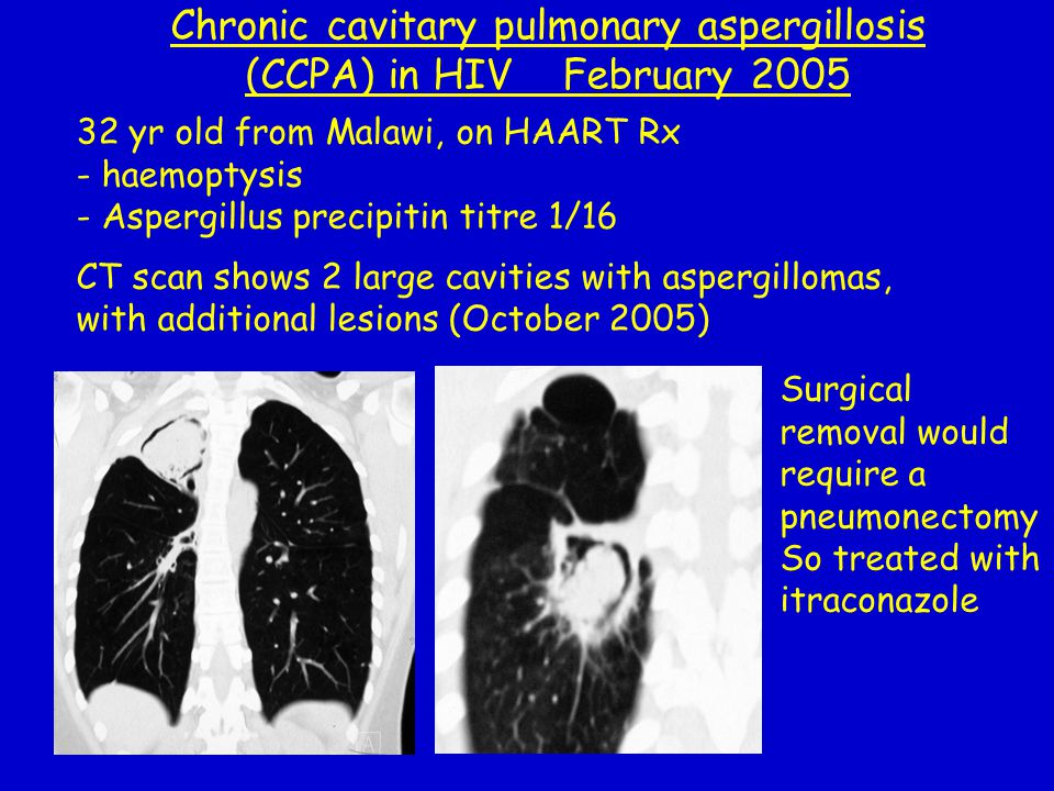 32 yr old from Malawi, on HAART Rx - haemoptysis - Aspergillus precipitin titre 1/16 CT scan shows 2 large cavities with aspergillomas, with additiona