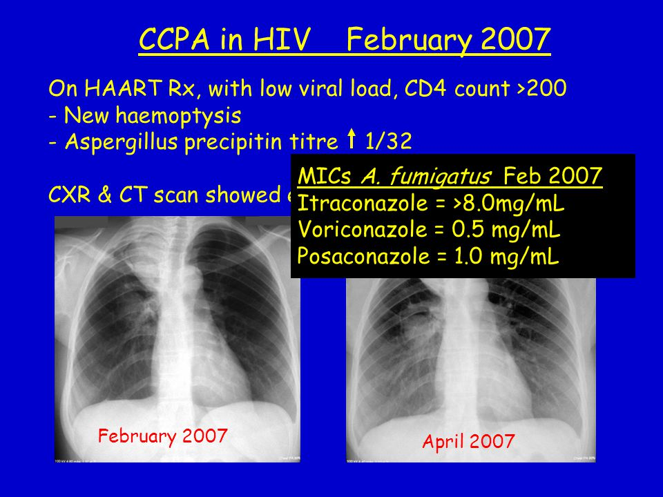 On HAART Rx, with low viral load, CD4 count >200 - New haemoptysis - Aspergillus precipitin titre 1/32 CXR & CT scan showed expansion of inferior cavi