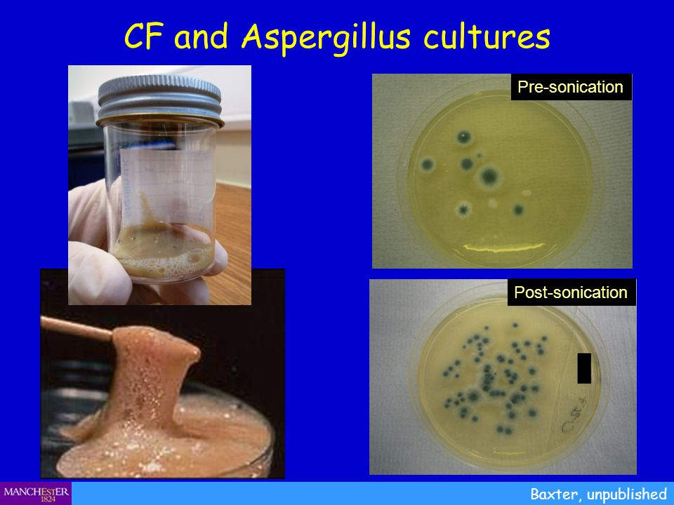 CF and Aspergillus cultures Baxter, unpublished Pre-sonication Post-sonication
