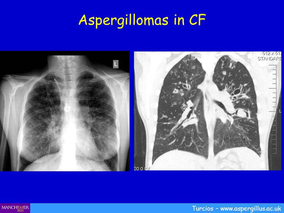 Aspergillomas in CF Turcios – www.aspergillus.ac.uk