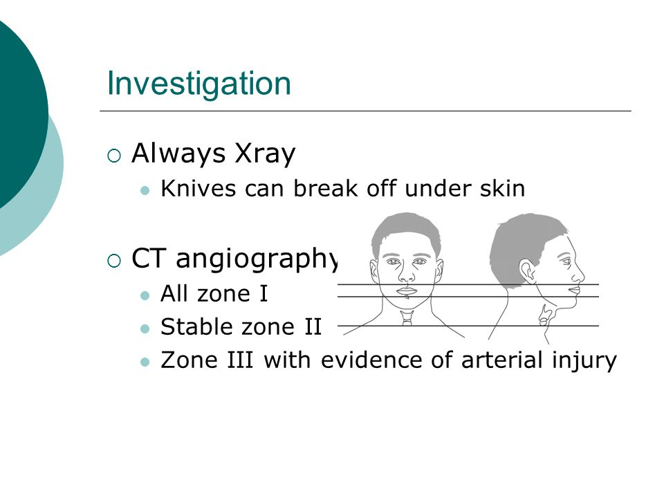Investigation Always Xray Knives can break off under skin CT angiography All zone I Stable zone II Zone III with evidence of arterial injury