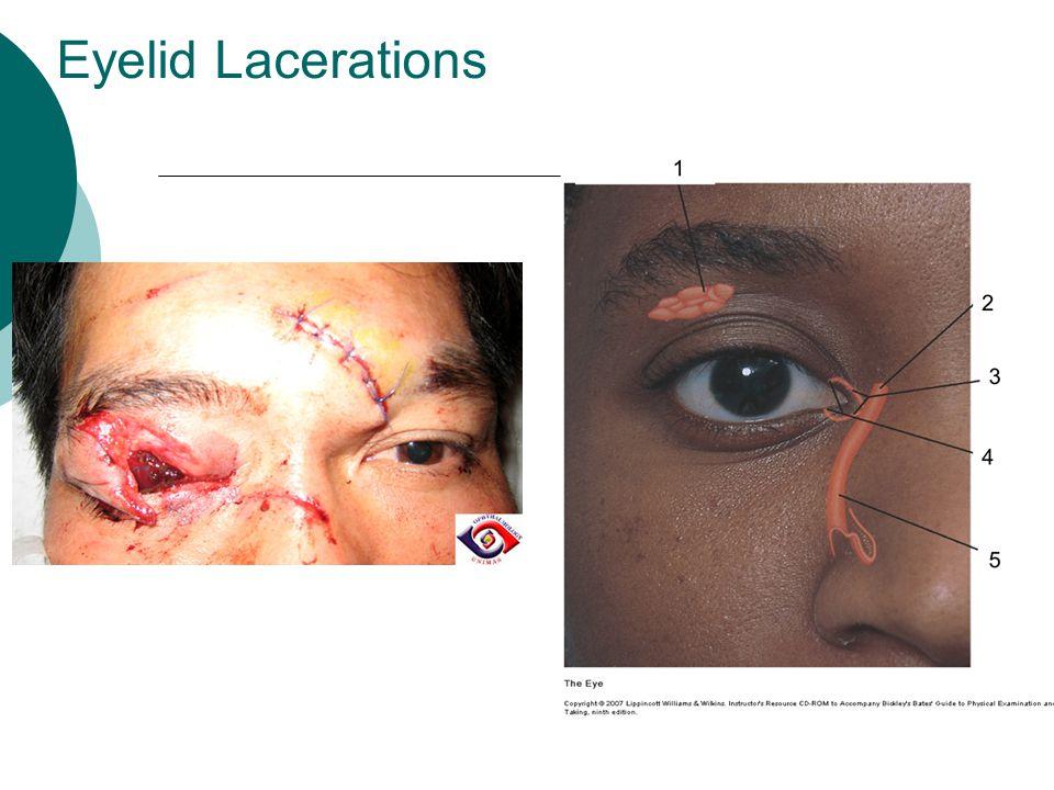 Eyelid Lacerations