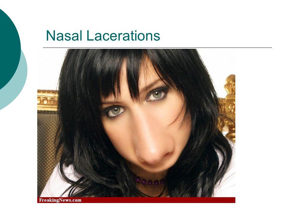 Nasal Lacerations
