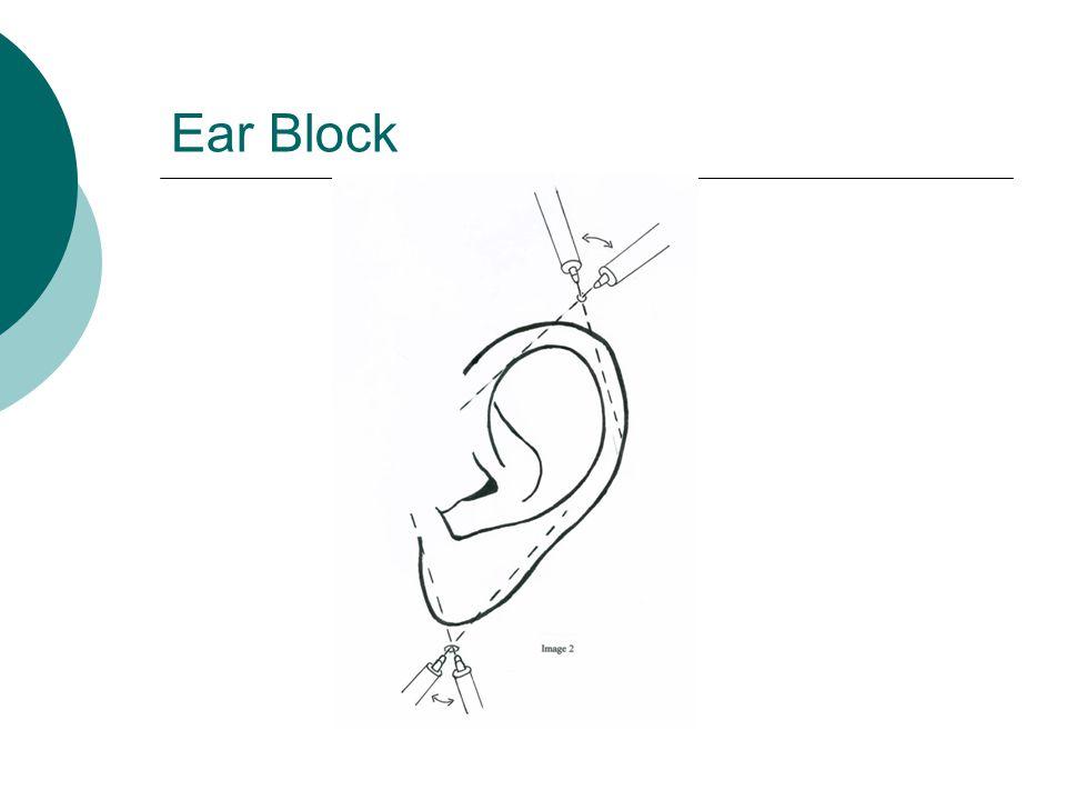 Ear Block