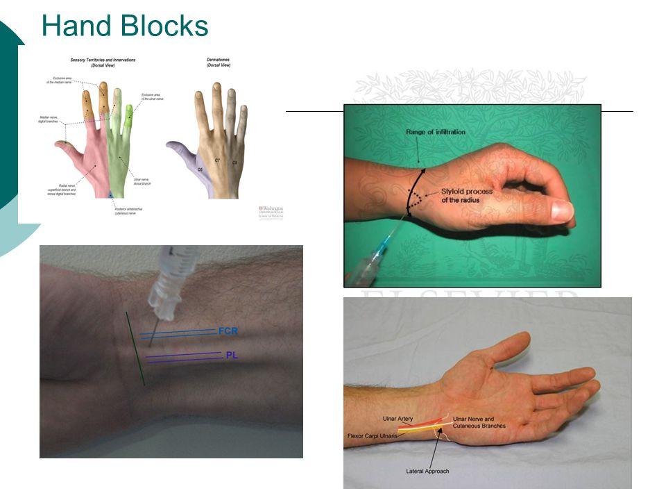 Hand Blocks
