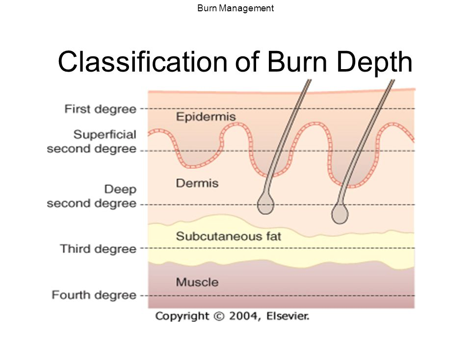 Burn Management Types of Burns Heat/flame/contact- scald burns most common Electrical – look for entry and exit wound –Cardiac monitoring, watch for rhabdo/cmpt synd Acid/alkali – irrigate with water Hydrofluoric acid – topical calcium powder Powder – wipe away, then irrigate