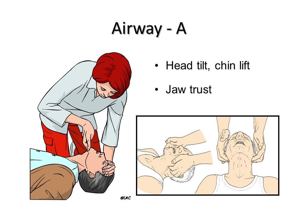 Airway - A Head tilt, chin lift Jaw trust