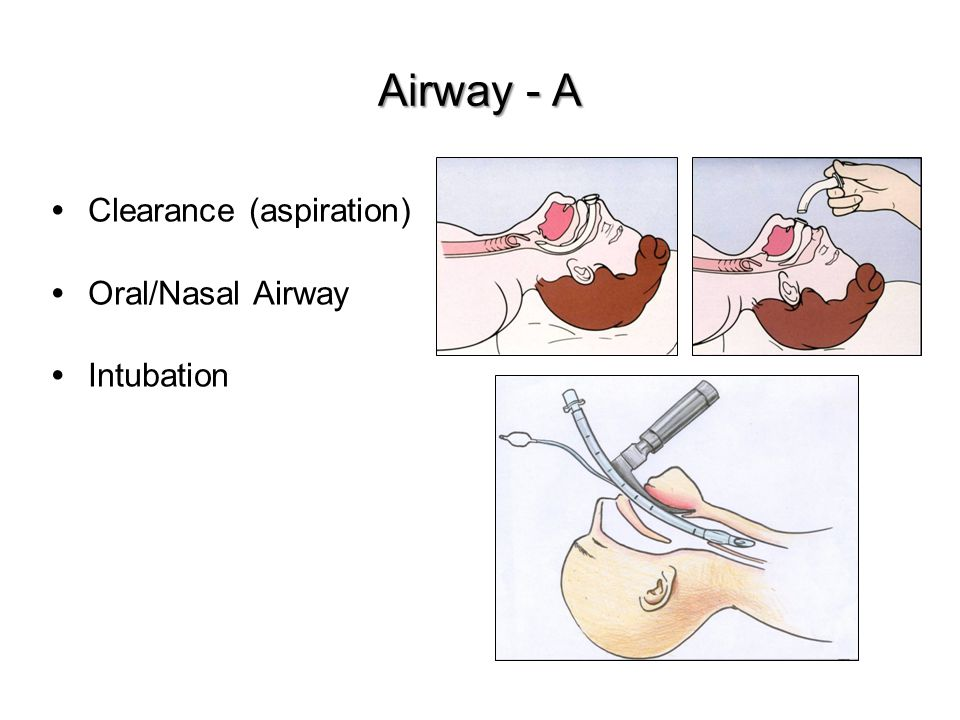 Clearance (aspiration) Oral/Nasal Airway Intubation Airway - A