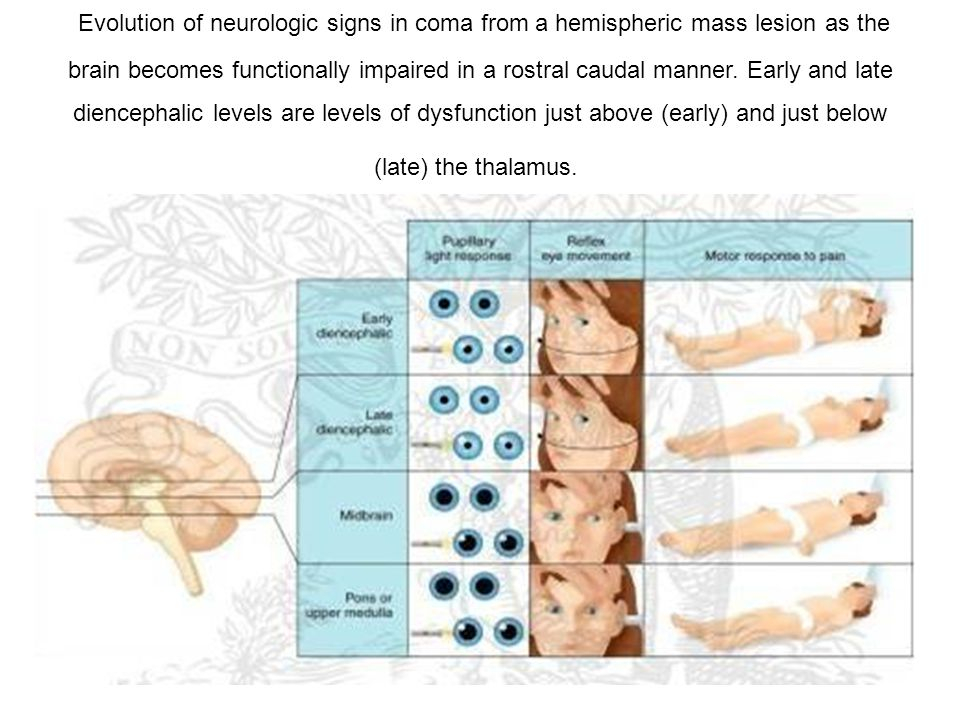 Evolution of neurologic signs in coma from a hemispheric mass lesion as the brain becomes functionally impaired in a rostral caudal manner.