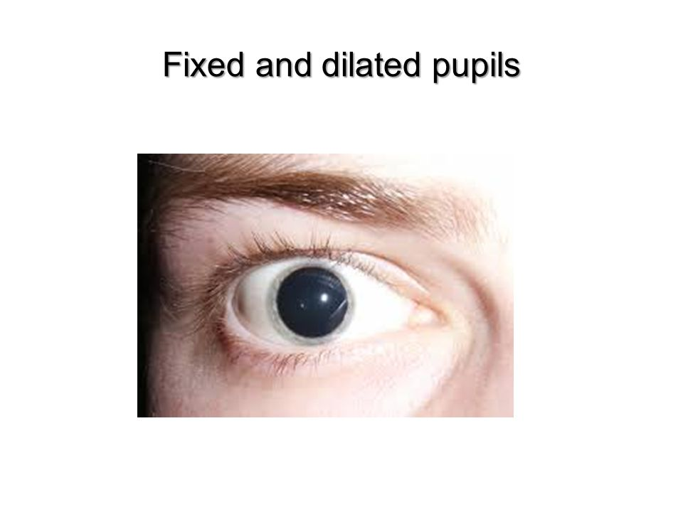 Fixed and dilated pupils