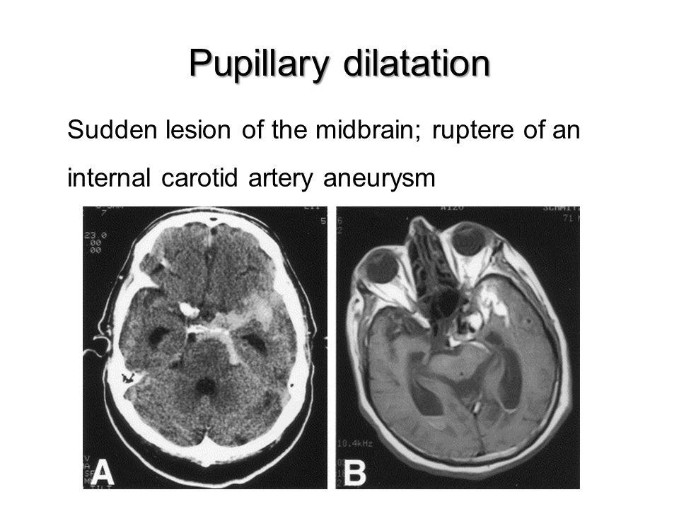 Sudden lesion of the midbrain; ruptere of an internal carotid artery aneurysm