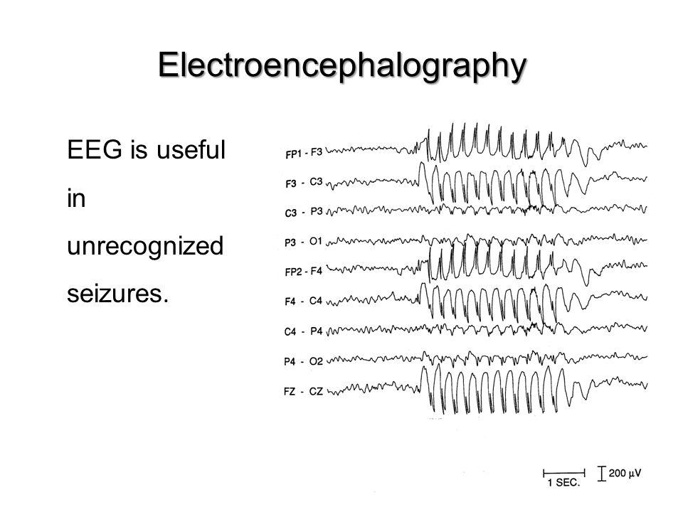 Electroencephalography EEG is useful in unrecognized seizures.