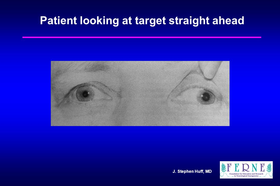J. Stephen Huff, MD Patient looking at target straight ahead