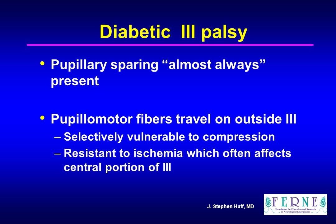 J. Stephen Huff, MD Diabetic III palsy Pupillary sparing almost always present Pupillomotor fibers travel on outside III –Selectively vulnerable to co