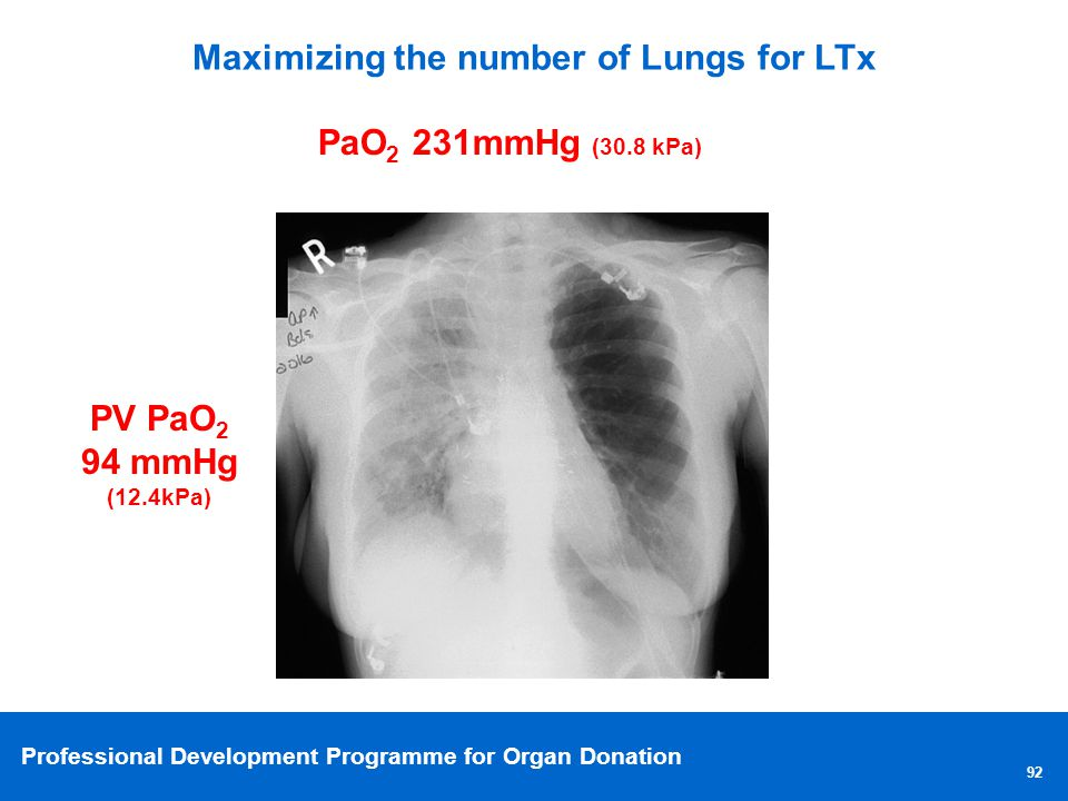 Professional Development Programme for Organ Donation Maximizing the number of Lungs for LTx 92 PaO 2 231mmHg (30.8 kPa) PV PaO 2 94 mmHg (12.4kPa)