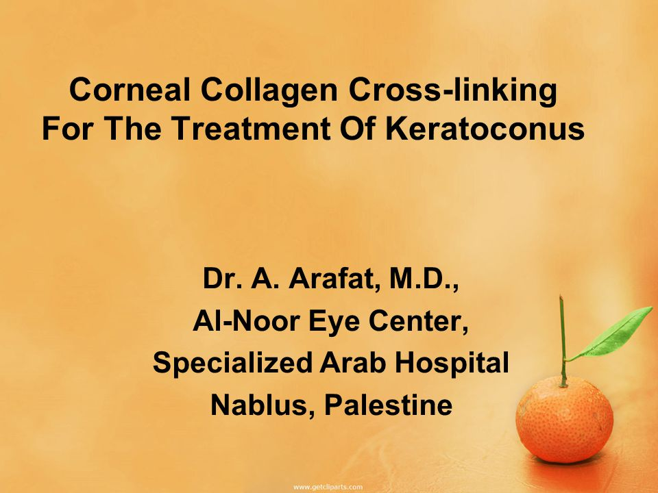 Corneal Collagen Cross-linking For The Treatment Of Keratoconus Dr.