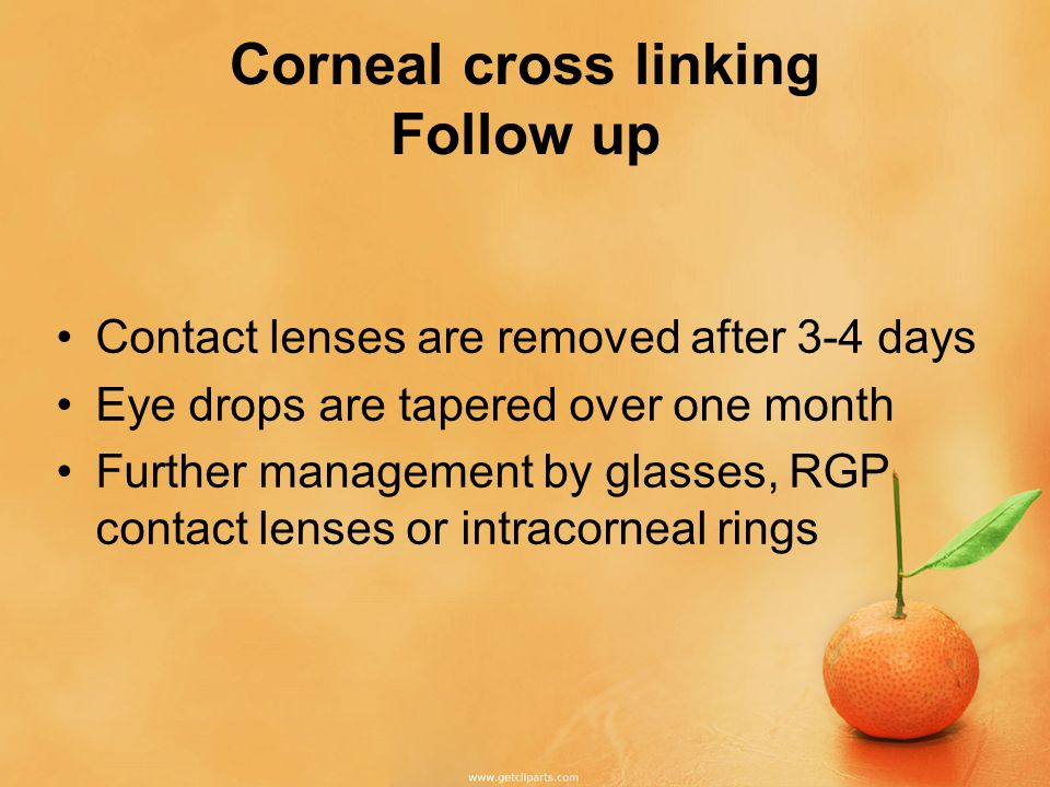 Corneal cross linking Follow up Contact lenses are removed after 3-4 days Eye drops are tapered over one month Further management by glasses, RGP contact lenses or intracorneal rings