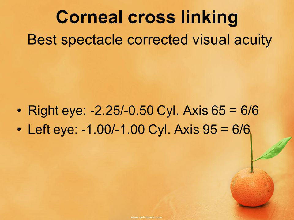 Corneal cross linking Clinical Examination No detectable anterior segment abnormality in either eye No fundus abnormality in either eye