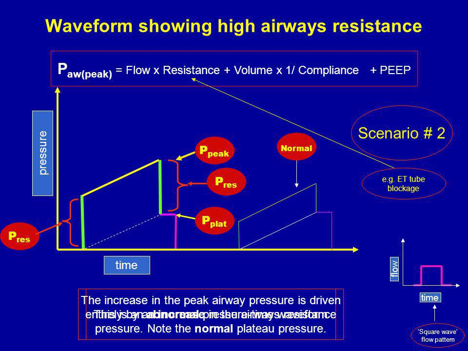 Waveform showing high airways resistance This is an abnormal pressure-time waveform time pressure P peak P res P plat P res Scenario # 2 The increase in the peak airway pressure is driven entirely by an increase in the airways resistance pressure.