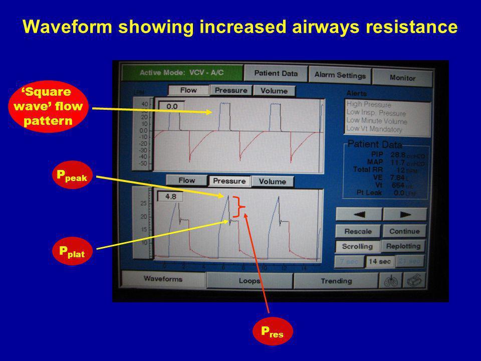 Waveform showing increased airways resistance P peak P plat P res Square wave flow pattern