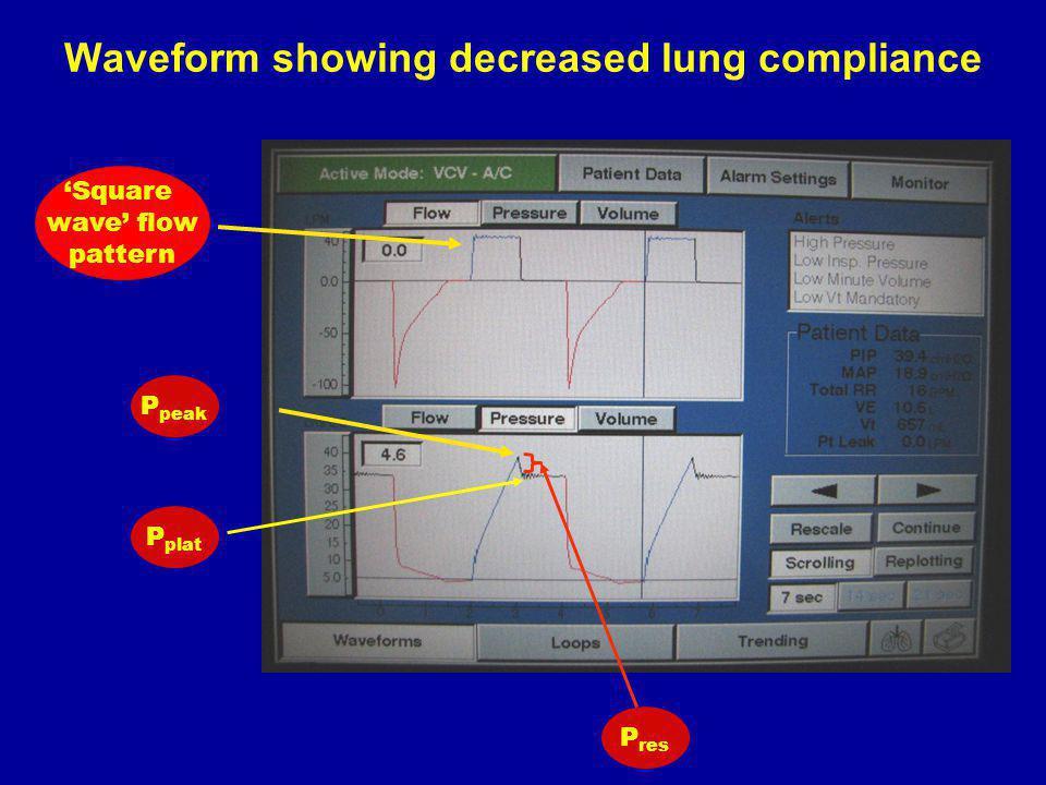 Waveform showing decreased lung compliance P peak P plat P res Square wave flow pattern