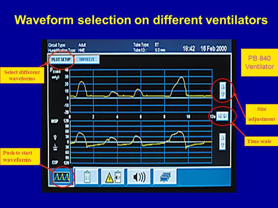 Waveform selection on different ventilators Push to start waveforms Time scale Size adjustment Select different waveforms PB 840 Ventilator
