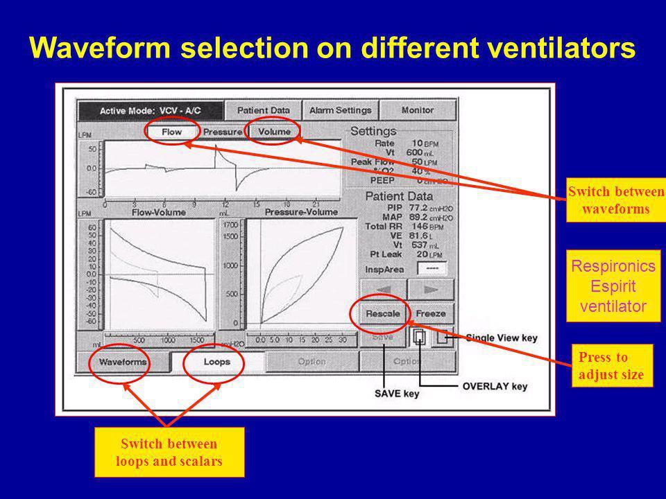 Press to adjust size Switch between loops and scalars Switch between waveforms Waveform selection on different ventilators Respironics Espirit ventilator