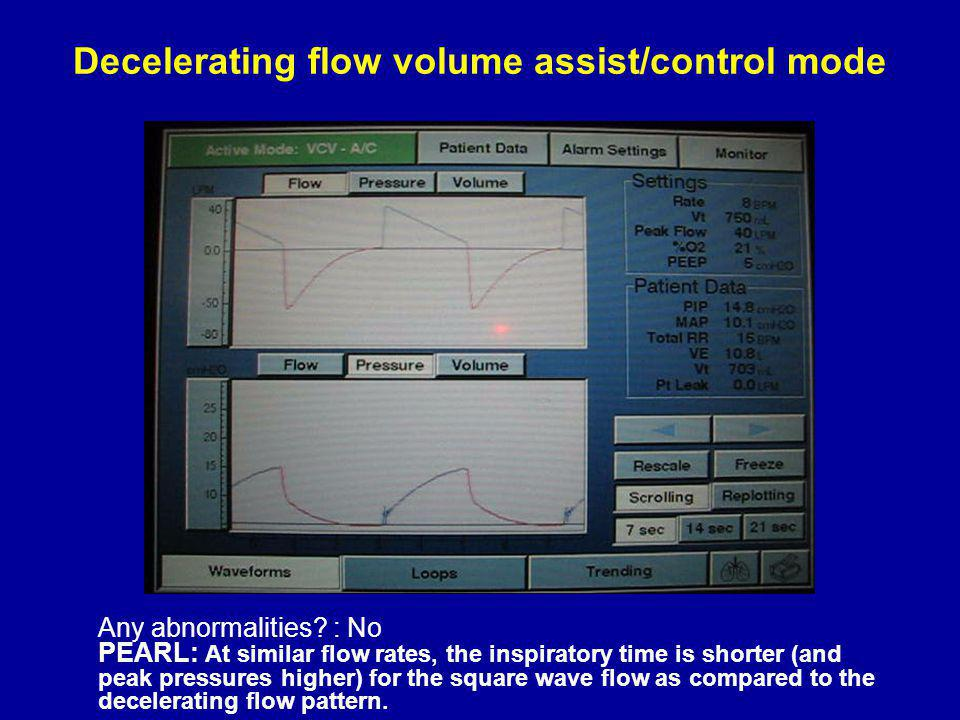 Decelerating flow volume assist/control mode Any abnormalities.