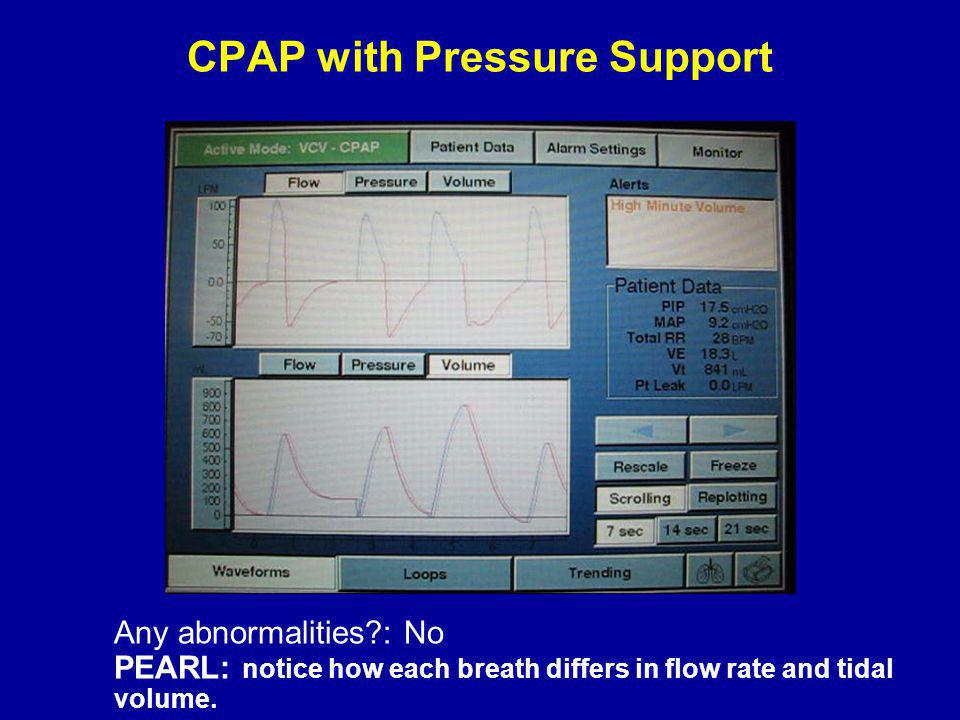 CPAP with Pressure Support Any abnormalities?: No PEARL: notice how each breath differs in flow rate and tidal volume.