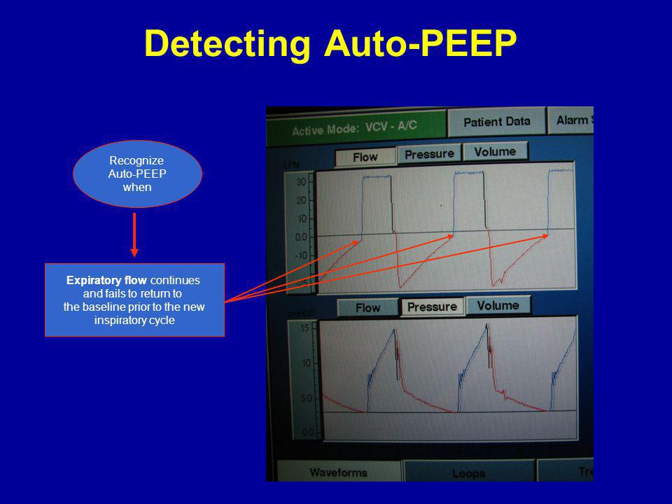 Detecting Auto-PEEP Recognize Auto-PEEP when Expiratory flow continues and fails to return to the baseline prior to the new inspiratory cycle
