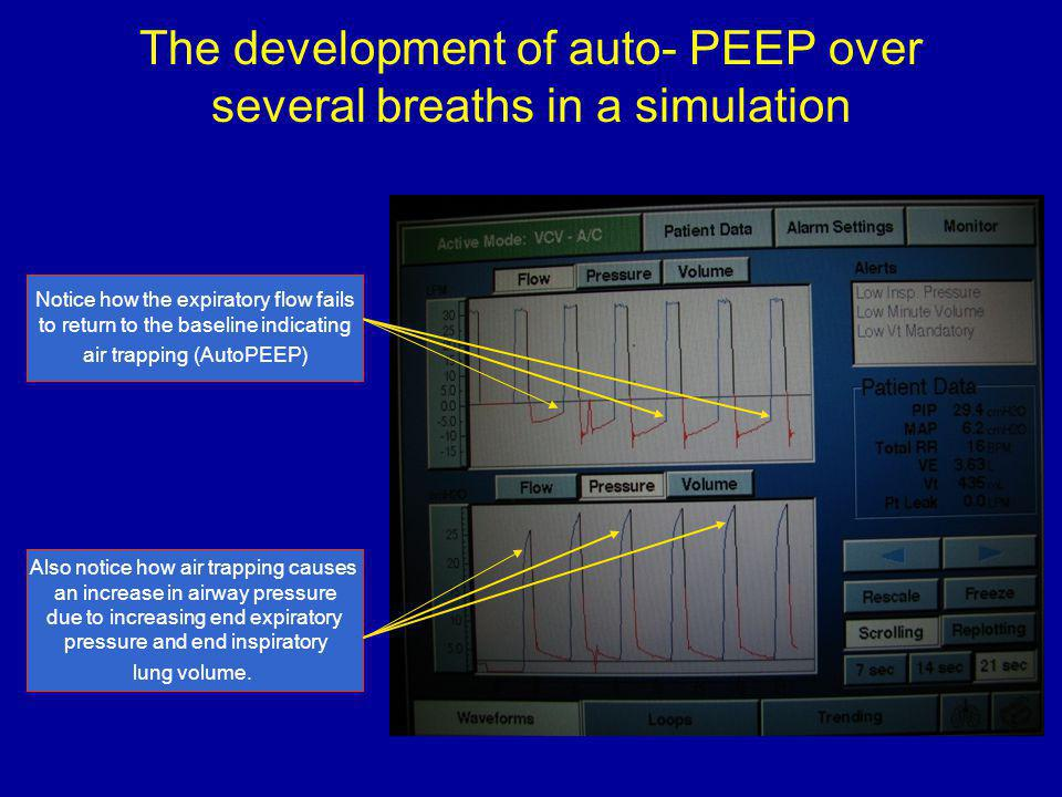 The development of auto- PEEP over several breaths in a simulation Notice how the expiratory flow fails to return to the baseline indicating air trapping (AutoPEEP) Also notice how air trapping causes an increase in airway pressure due to increasing end expiratory pressure and end inspiratory lung volume.