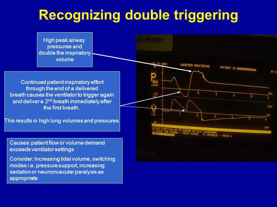 Recognizing double triggering Continued patient inspiratory effort through the end of a delivered breath causes the ventilator to trigger again and deliver a 2 nd breath immediately after the first breath.