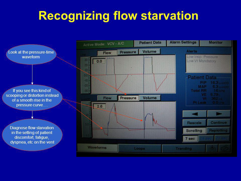 Recognizing flow starvation Look at the pressure-time waveform If you see this kind of scooping or distortion instead of a smooth rise in the pressure curve….