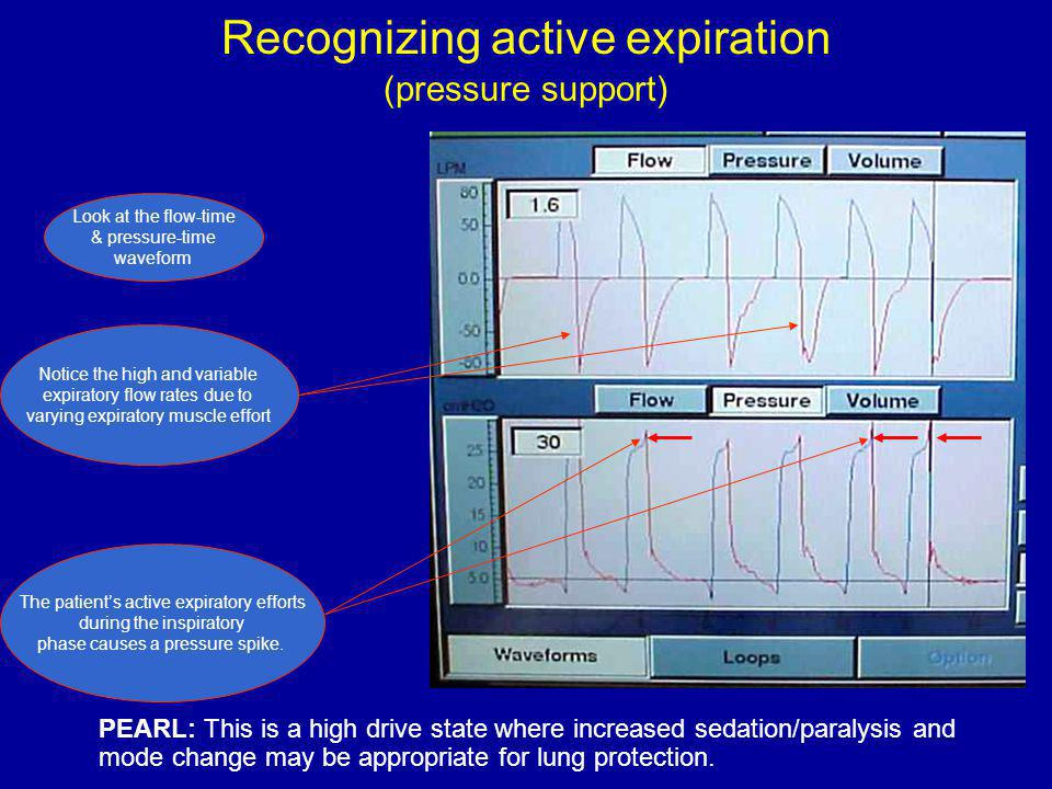 Recognizing active expiration (pressure support) Look at the flow-time & pressure-time waveform The patients active expiratory efforts during the inspiratory phase causes a pressure spike.