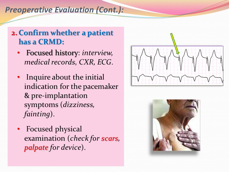 2.Confirm whether a patient has a CRMD: Focused history Focused history: interview, medical records, CXR, ECG. Inquire about the initial indication fo