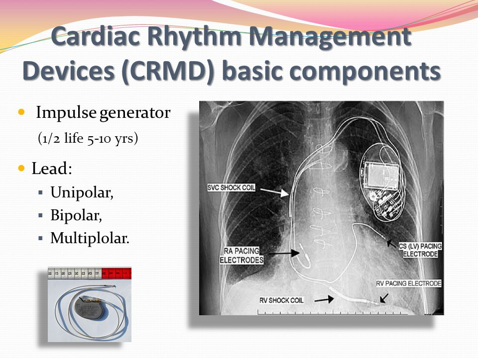 Not All Pacemakers Switches to a Continuous Asynchronous Mode When a Magnet is Applied.