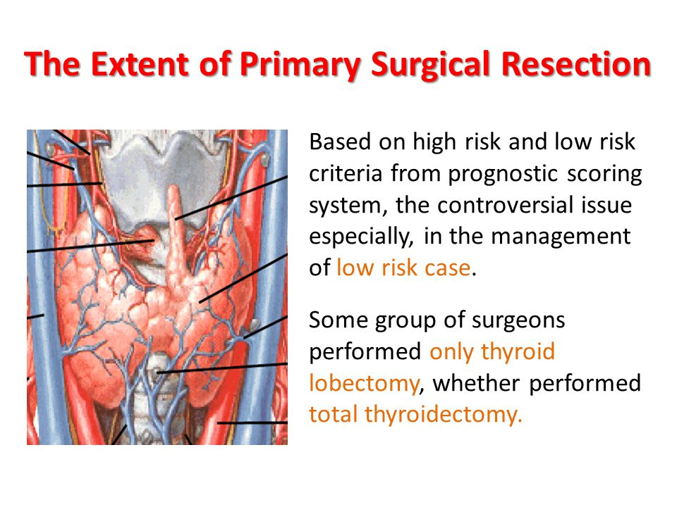 The Extent of Primary Surgical Resection Based on high risk and low risk criteria from prognostic scoring system, the controversial issue especially, in the management of low risk case.
