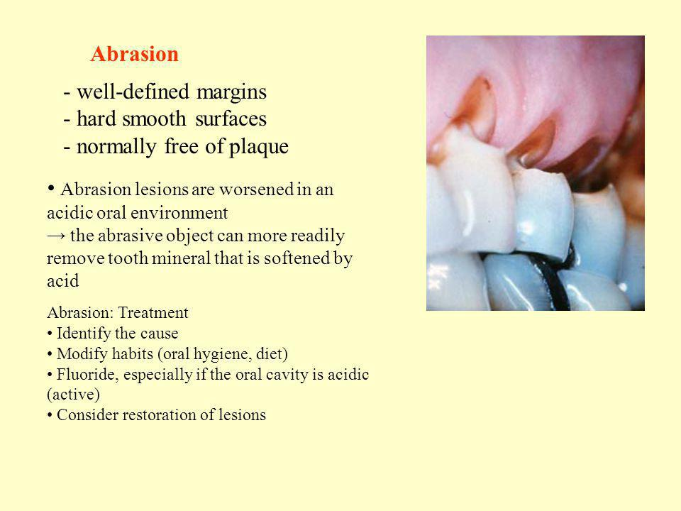 - well-defined margins - hard smooth surfaces - normally free of plaque Abrasion Abrasion lesions are worsened in an acidic oral environment the abras