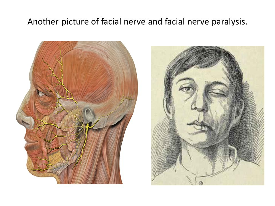 Another picture of facial nerve and facial nerve paralysis.