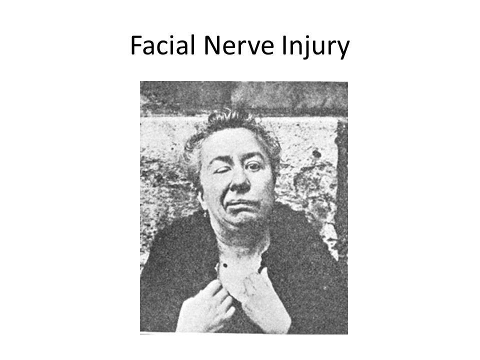 Facial Nerve Injury